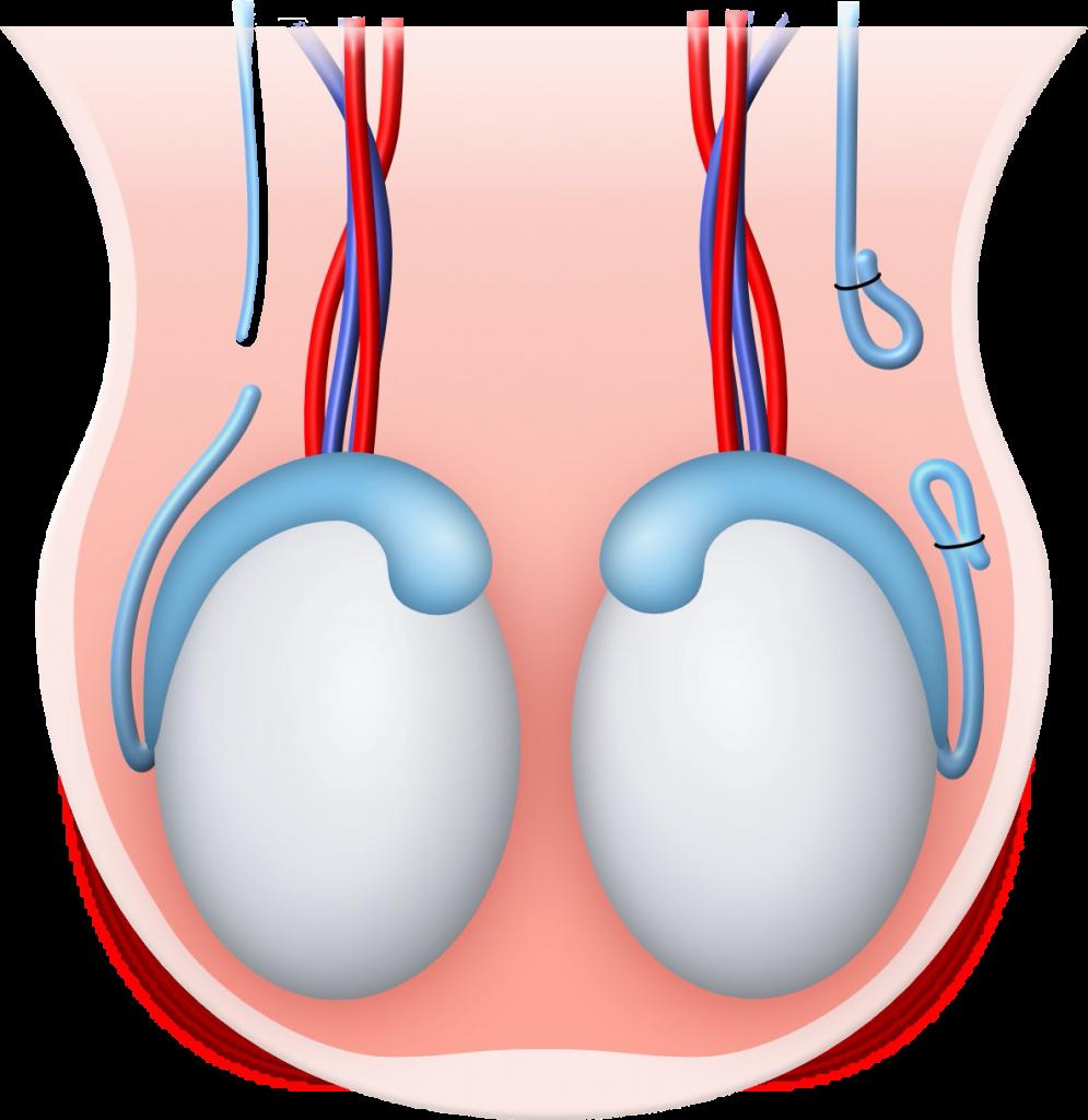 Frau nachteile sterilisation Sterilisation der